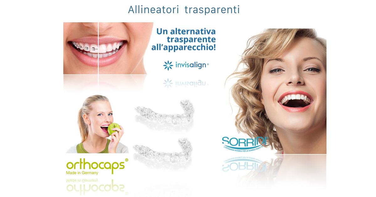 Apparecchi ortodontici - allineatori invisibili