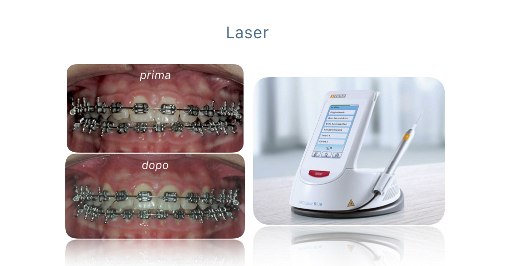 Apparecchi ortodontici - laser