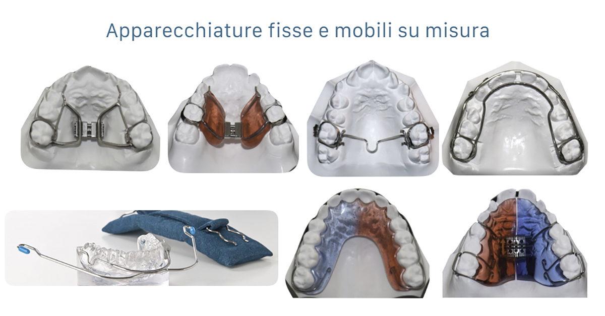 Apparecchi ortodontici mobili e fissi su misura