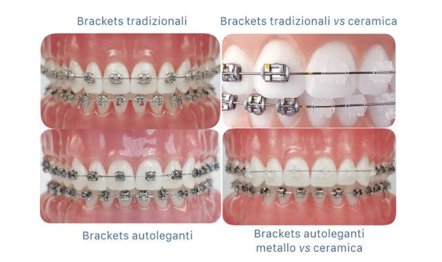 apparecchi ortodontici - brackets