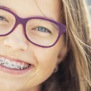 Studio ortodontico Assumma - Età prepuberale